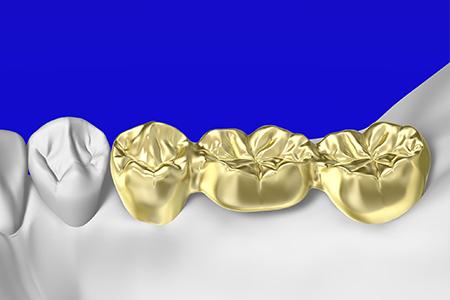 金歯(ゴールド)